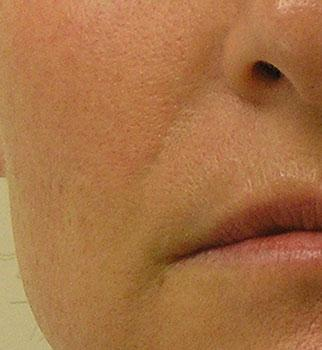Nasal Fold 2 After 5 Hydrafacial And Red Light Treatments